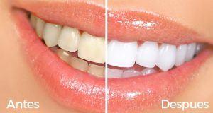 Tips caseros para blanquear tus dientes rapidamente